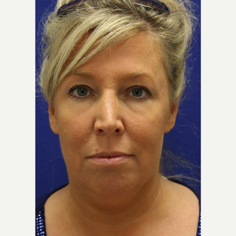 45-54 year old woman treated with Chin Liposuction before 3407057