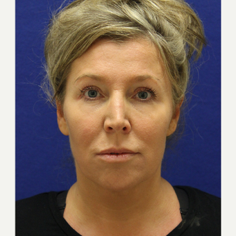 45-54 year old woman treated with Chin Liposuction after 3407057