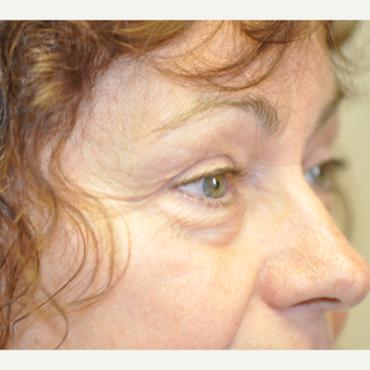 55-64 year old woman treated with Eyelid Surgery before 3844498