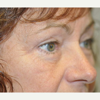 55-64 year old woman treated with Eyelid Surgery after 3844498