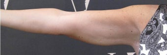 Non-Surgical Fat Reduction of the Upper Arms by CoolSculpting after 3297633