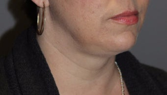 35-44 year old woman treated with Kybella after 3147397