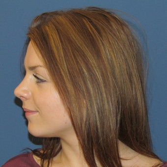 18-24 year old woman treated with Rhinoplasty after 2265003