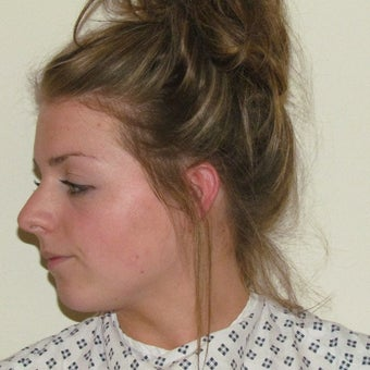 18-24 year old woman treated with Rhinoplasty before 2265003