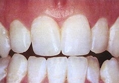 Teeth Whitening (Microabrasion) after 241820