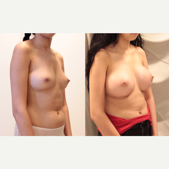 22 year old woman treated with Breast Augmentation after 3073833
