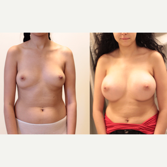 22 year old woman treated with Breast Augmentation before 3073833
