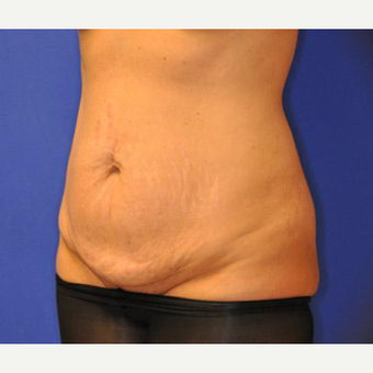 Tummy Tuck before 3241407