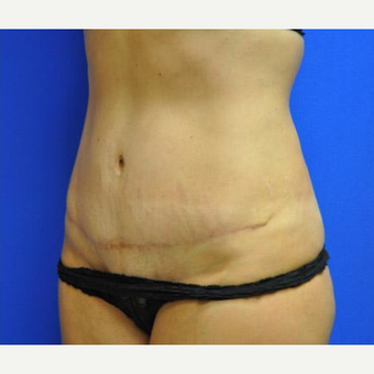 Tummy Tuck after 3241407