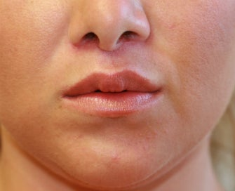 Lip Lift San Diego (permanent lip enhancement) after 1151947