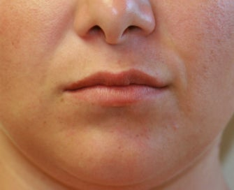 Lip Lift San Diego (permanent lip enhancement) before 1151947