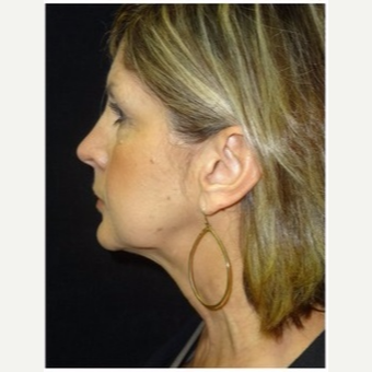 55-64 year old woman treated with Ultherapy after 3179873