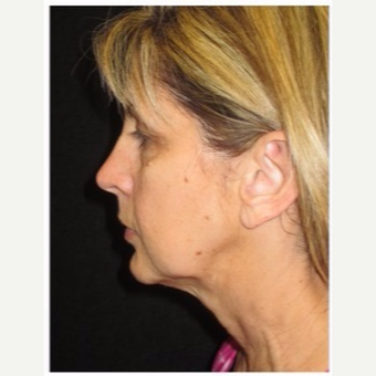 55-64 year old woman treated with Ultherapy before 3179873