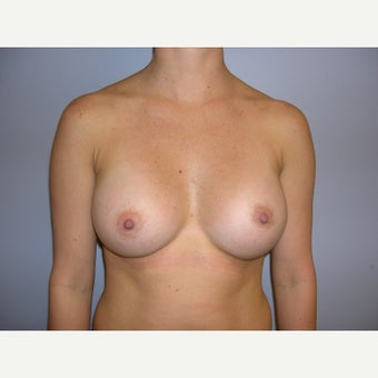 25-34 year old woman treated with Breast Augmentation after 2321443