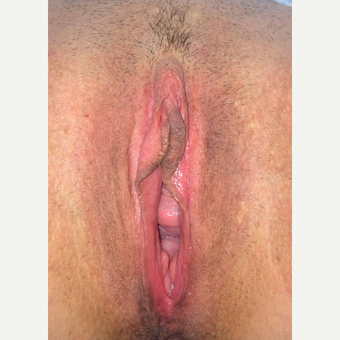 35-44 year old woman treated with Vaginal Rejuvenation before 3055847