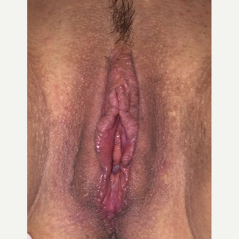 35-44 year old woman treated with Vaginal Rejuvenation after 3055847