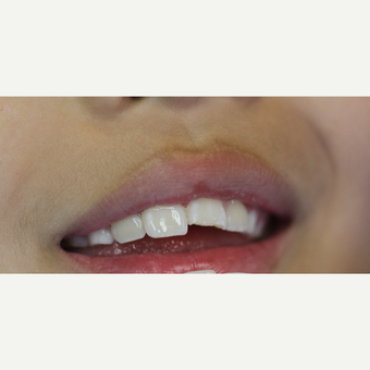 17 or under year old man treated with Dental Bonding before 3432700