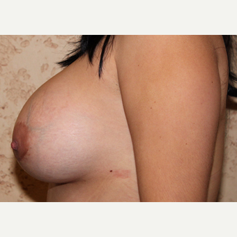 Silicone Implants - Breast Augmentation after 3325109