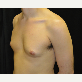25-34 year old man treated with Male Breast Reduction before 3423932