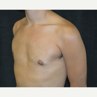 25-34 year old man treated with Male Breast Reduction after 3423932
