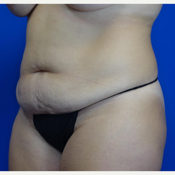 35-44 year old woman treated with Tummy Tuck before 3769550