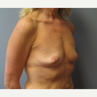 55-64 year old woman treated with Breast Augmentation before 3538957