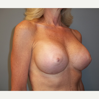55-64 year old woman treated with Breast Augmentation after 3538957
