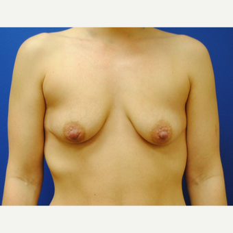 25-34 year old woman treated with Breast Lift with Implants before 3299845