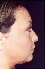 Endoscopic Facelift before 205401