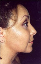 Endoscopic Facelift after 205401