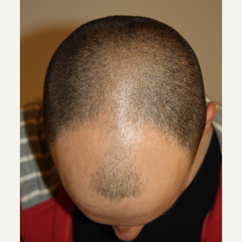 man treated with FUE Hair Transplant before 3749351