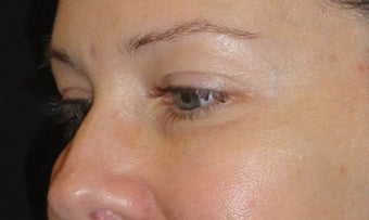 Restylane after 959475
