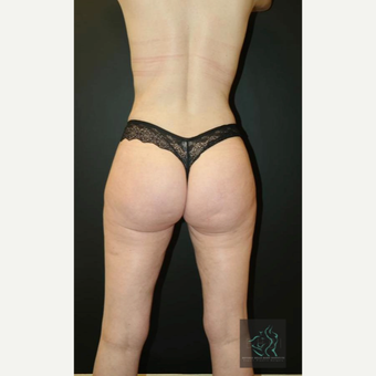 35-44 year old woman treated with Butt Augmentation after 3076055
