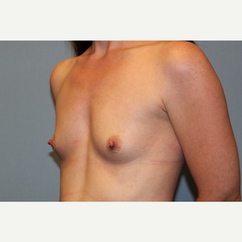 25-34 year old woman treated with Breast Augmentation before 3569914