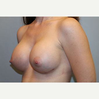 25-34 year old woman treated with Breast Augmentation after 3569914
