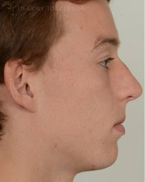 18-24 year old man treated with Rhinoplasty before 3259576