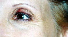 Botox before 1405740