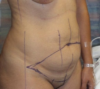 35-44 year old woman treated with Tummy Tuck before 3321849