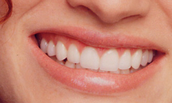 35-44 year old woman treated with Porcelain Veneers after 2011405