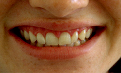 35-44 year old woman treated with Porcelain Veneers before 2011405