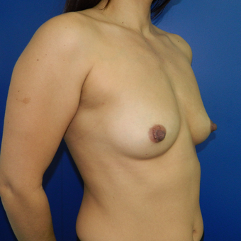 35-44 year old woman treated with Breast Augmentation before 3060291