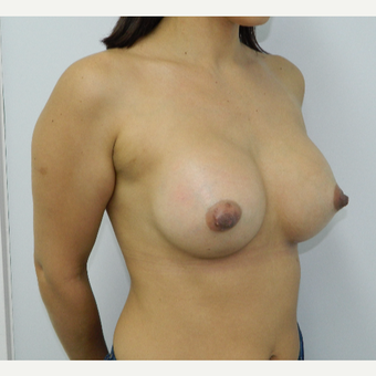 35-44 year old woman treated with Breast Augmentation after 3060291