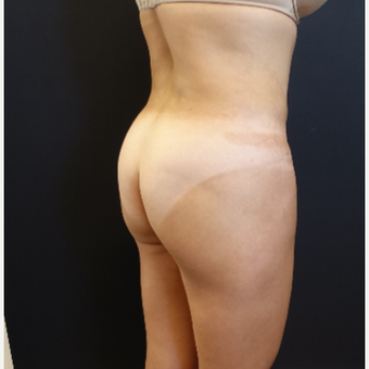 35-44 year old woman treated with Brazilian Butt Lift Revision before 3234479
