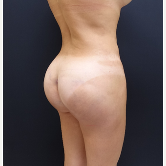 35-44 year old woman treated with Brazilian Butt Lift Revision after 3234479