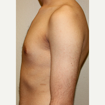 25-34 year old man treated with Male Breast Reduction after 3215390
