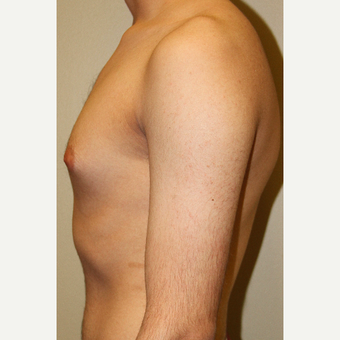 25-34 year old man treated with Male Breast Reduction before 3215390