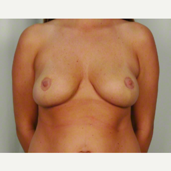 25-34 year old woman treated with Breast Lift after 3026483