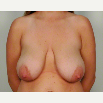 25-34 year old woman treated with Breast Lift before 3026483
