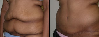 28 year old female tummy tuck before 1230388
