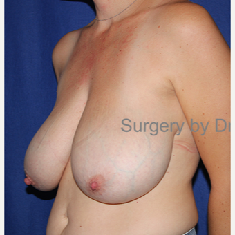 35-44 year old woman treated with Breast Reduction before 3432355